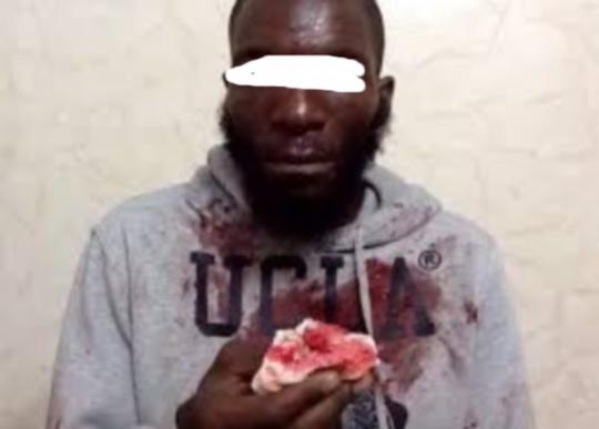 اعتداء إجرامي على شاب إفريقي بجوطية الناظور