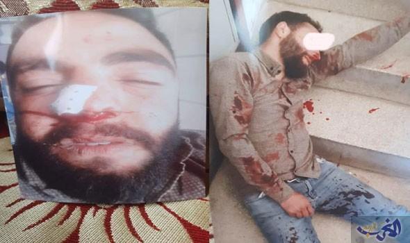 هجوم واعتداء عنيف من طرف ثلاثة أشخاص على مواطن  بوجدة