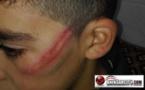 """تلميذ يتعرض للضرب المبرح بواسطة """"تيو"""" (أنبوب بلاستيكي) لعدم قدرته على تصحيح تمرين"""