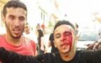 """عناصر الأمن تدخلت بقوة باستعمال القنابل المسيلة للدموع في مسيرة  """"عيد الفطر"""" بالحسيمة، ما أوقع عدد من المصابين من شباب حراك الريف"""