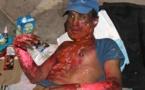 مأساة بالناظور: متشرد يعاني  بحروق من الدرجة الثانية على مستوى الصدر والوجه والأيدي