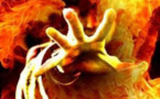 طفل يحترق ذاتياً يحير أطباءه ويفشلون في علاجه