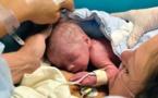 معجزة: أول ولادة في العالم بعد عملية زرع رحم