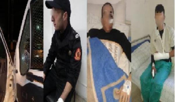 مديرية الصحة تكذب مديرية الحموشي بشأن عدد إصابات رجال الامن بالحسيمة..90 ماشي 298إصابة