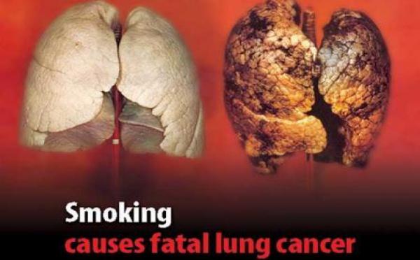 Peligros del habito de fumar