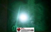 الطاقم الطبي بالمركز الاستشفائي بمدينة خنيفرة  يعثر  على مقص  داخل القفص الصدري لرجل متقاعد