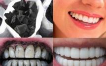 تبييض الأسنان بالفحم.. مفيد أم ضار